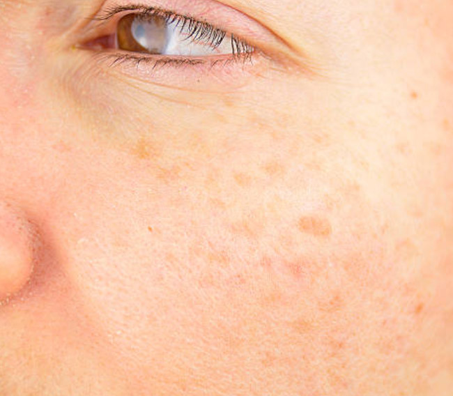 Natural Remedies to Treat Age Spots at Home